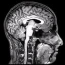 Más allá del tamaño del cerebro
