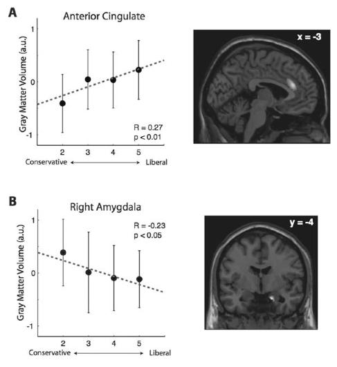 Figura 3. Correlación entre el tamaño de Dos Regiones Cerebrales y Orientación Política